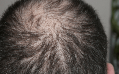 Doing These Things May Have You Looking For Hair Growth Remedies