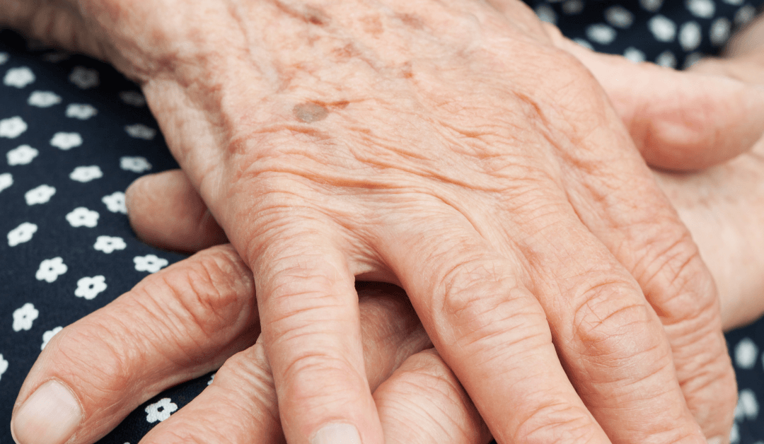 How Can Lypo-Gold Help Hand Wrinkles?