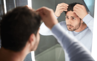 Understanding Alopecia And Why Lypo Gold Is The Best Option!