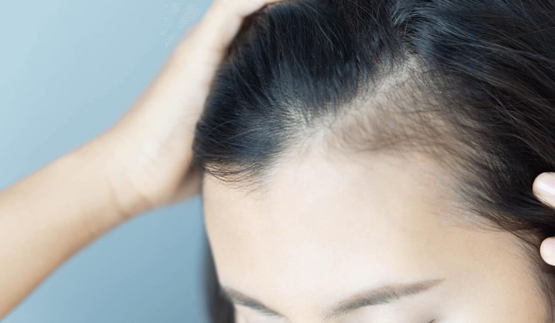 hair loss in Burlington MA