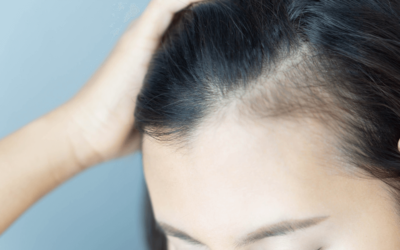 Ways To Prevent Hair Loss And Regenerate Hair Growth!