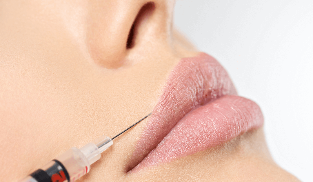 Get Lip Injections Without The Risks!