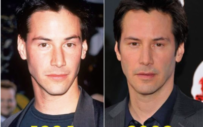Keanu Reeves Plastic Surgery ?